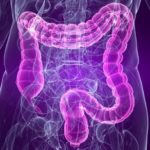 sindrome intestino irritabile